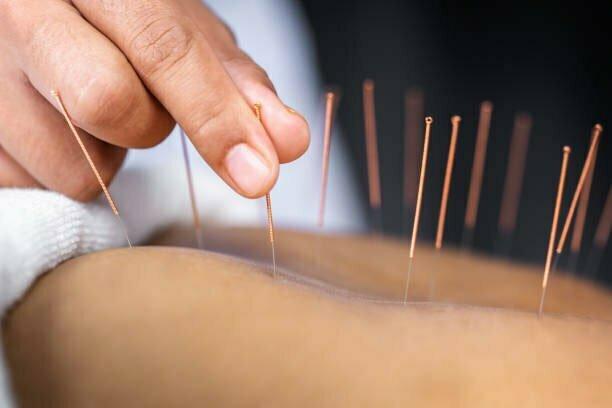 Jadepoints akupunktur
