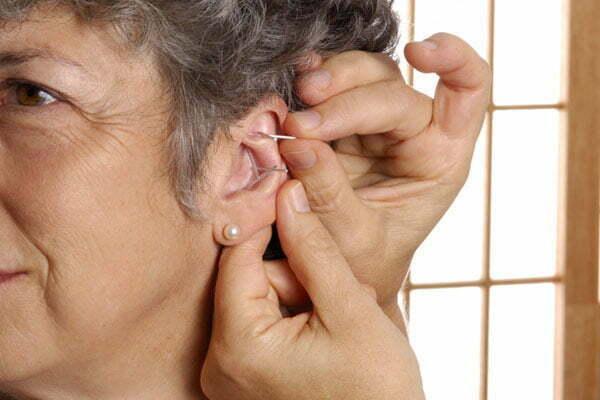 Jadepoints öronakupunktur